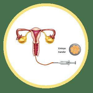 Frozen-Embryo-Transfer